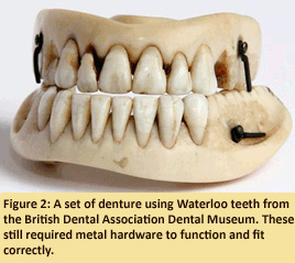 Figure 2: A set of dentures using Waterloo teeth from the British Dental Association Dental Museum. These still required metal hardware to function and fit correctly.