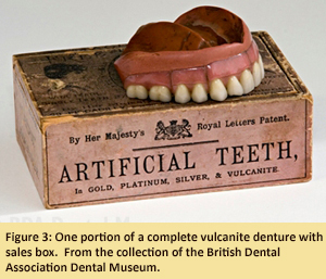 Figure 3: One portion of a complete vulcanite denture with sales box. From the collection of the British Dental Association Dental Museum.